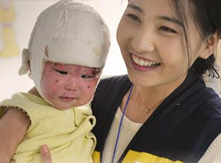 Beautiful Journey for Burn Patients in Mongolia